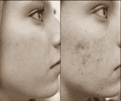 how to get rid of pimples scars
