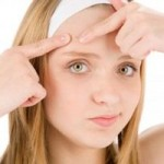 best pimple spot treatment