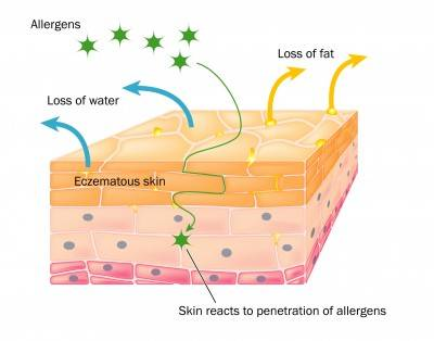 skin showing changes due to eczema
