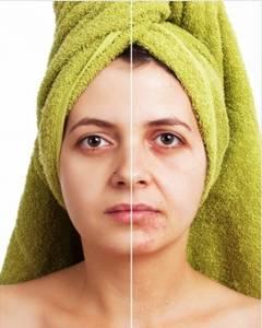 acne blemished skin